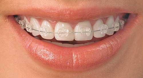 Ini Bahayanya Jika Gunakan Kawat Gigi Bukan Pada Ahlinya