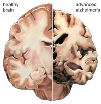 Awas, Alzheimer Terus Bertambah, Ini Gejala Awalnya